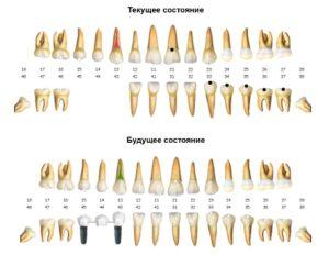 DentalPRO CRM-система фото
